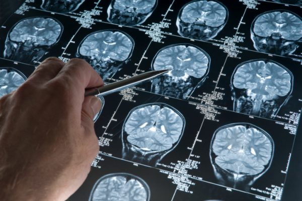 Neurology Market 2013-2019